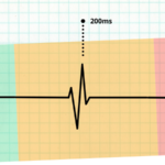 Core Web Vitals for WordPress: How To Get A Good Score